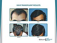 Can Hair Transplant Give A Natural Look? - Hair Transplant News