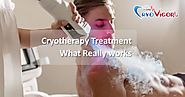 Cryotherapy Treatment - What Really works