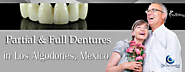 Full and Partial Dentures in Los Algodones, Mexico