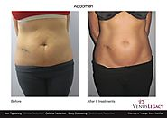 A Comfortable, Non-Invasive Option for Body Contouring