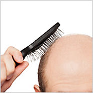 What is FUT Hair Transplant and How Does it Works?