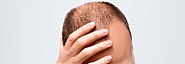 Tackling stress and anxiety of male pattern baldness with Hair Transplant