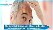 Rejuvenate Hair Clinics — Best biofibre hair transplant London