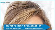 Best Biofibre hair transplant clinics in UK - Rejuvenate Hair Clinics