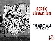 Aortic Dissection | EM Cases | EM Cases Course