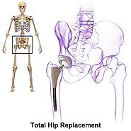 Hip Replacement In India - Cost, Hospitals, Surgeons - Lyfboat
