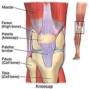 Knee Replacement Surgery in India, Knee Pain Relief - Lyfboat