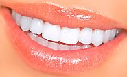 Best Dental Veneers in Cancun, Mexico