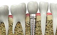 Affordable Dental Implants in Cancun