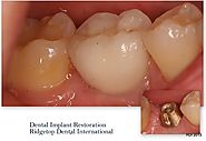 Implant Crown Restoration – Ridgetop Dental International