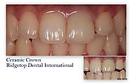 Dental Crown – Ridgetop Dental International