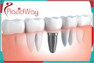 World Class Dental Implants in India