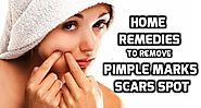 How to Remove Pimple Marks And Acne Marks From Face?