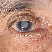 Cataract Surgery: When You Need to Get Diagnosed by an Ophthalmologist and What to Expect