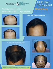 Is Hair Transplant in Better Idea for Baldness?
