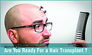 Are You Ready For a Hair Transplant?