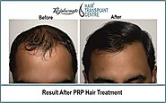 platelet rich plasma therapy hair loss treatment