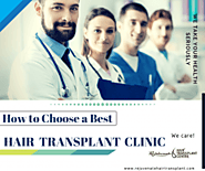 How to Find Best Hair Transplant Clinic | Hair Transplant India