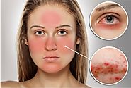 Effective Home Remedies For Rosacea - Rosacea Natural Treatment