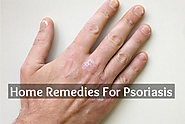 Natural Remedies For Psoriasis - Herbal Treatment For Psoriasis - Crazy Health Plan
