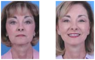 Face lift, Nose Job, Eyelid lift, Brow Lift, Ear Pinning, Botox, Fillers, San Antonio Plastic Surgeon, Dr. Manuel Lop...