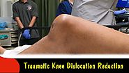 Traumatic Knee Dislocation Reduction-Quick Version