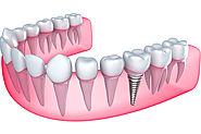 Dental Implant, affordable dental implants, Cosmetic Dental Treatment