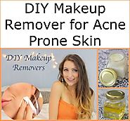 DIY Makeup Remover for Acne Prone Skin