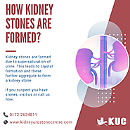 How Kidney Stones are formed?