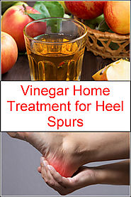 Vinegar Home Treatment for Heel Spurs | Listerine Foot Soak