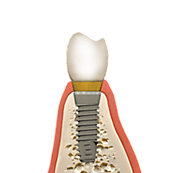 Maximise the Outcome of Dental Implant Surgery with Bone Grafting