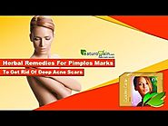 Herbal Remedies for Pimples Marks to Get Rid of Deep Acne Scars
