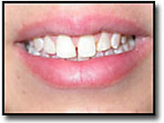 Dental Bonding in Burlington – Transform Your Smile