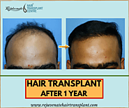 Hair Transplant Results After 1 Year