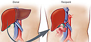Liver Transplantation in India with top Doctors