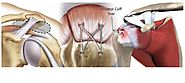 Rotator Cuff Injury Treatment India | Arthroscopic Rotator Cuff Surgery Coimbatore