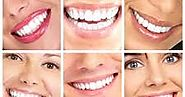 Snow Teeth Whitening Reviews, Coupon & Discount Code: Snow Teeth Whitening Discount Code - Exclusive Teeth-Whitening ...