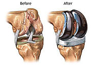 Knee Replacement Surgery in India with Best Price