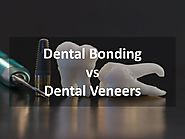 Which Procedure is Better – Dental Bonding or Dental Veneers