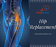 Best Hip Replacement Surgeons in India