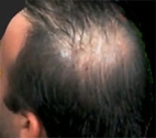 Researchers Report Progress With Growing Hair - WebMD
