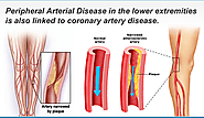 What is peripheral obstructive arterial disease (RAA) - Artery stenosis and blockage