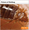 Bed Bugs Bites, Signs, in Hotels, Treatment, Symptoms - MedicineNet
