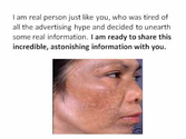 Melasma Treatment - How To Get Rid of Hyperpigmentation