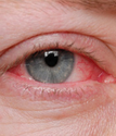 Natural Remedies for the Treatment of Chronic Blepharitis
