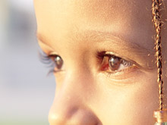Nystagmus: prevention and cure