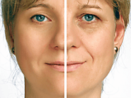 What is Rhytidectomy or Facelift Surgery?