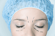Shape Up Your Eyelids with blepharoplasty surgery | Eyelid Surgery
