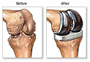 Famous Knee Problem Specialist in Ahmedabad - Book Appointment Online