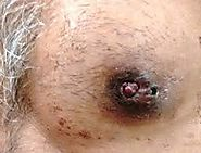 IDC Type: Papillary Carcinoma of the Breast